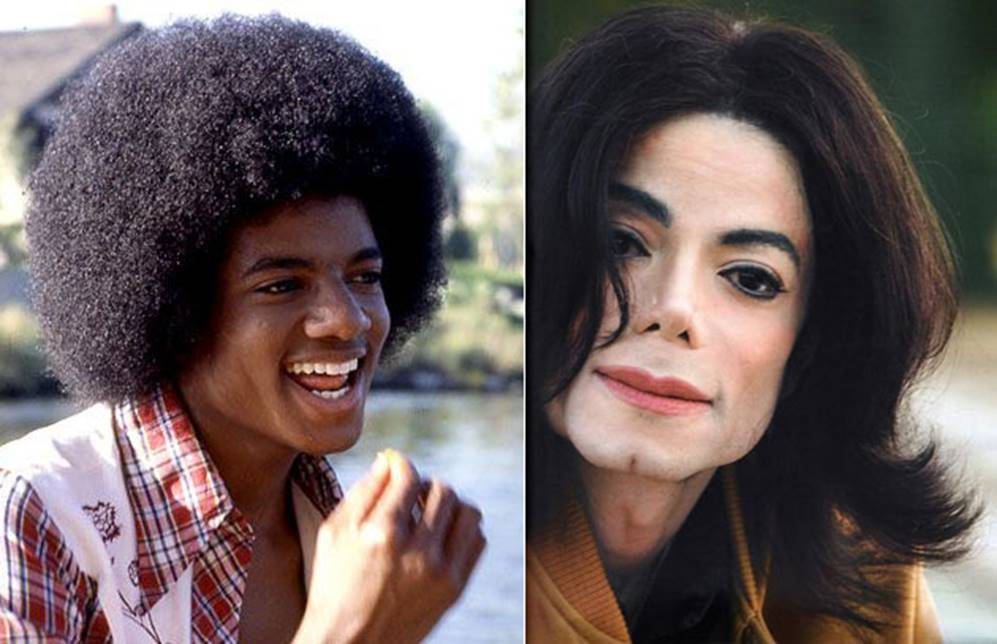 The Unforgettable Michael Jackson Before and After Plastic ...